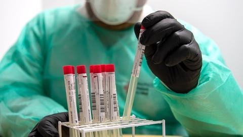 Proben für einen PCR-Test werden von einem Mitarbeiter im Corona-Testzentrum in Nordhorn sortiert. (dpa)